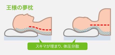 王様の夢枕は柔軟性があるので首の隙間を埋めてくれる